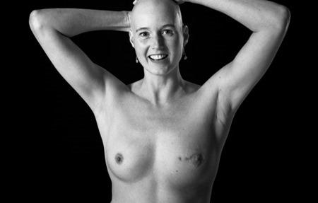 Costuras a flor de piel. Fotografía y cáncer.