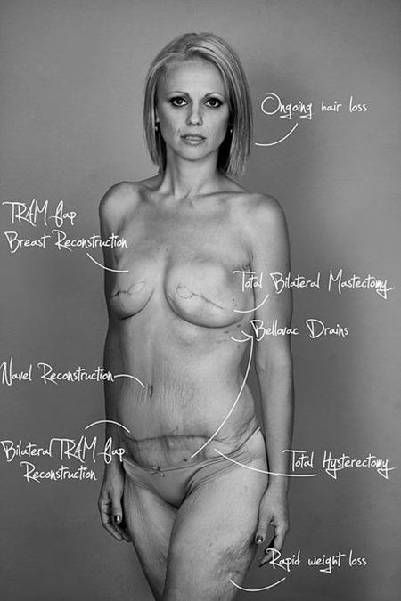 cicatrices-no-son-feas-cancer-de-mama-1.jpg